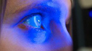 Dry Eye Examination
